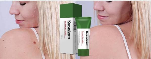Keraderm - para problemas de pele - farmacia - onde comprar - funciona